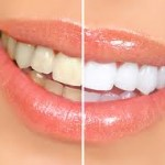 whitening_difference